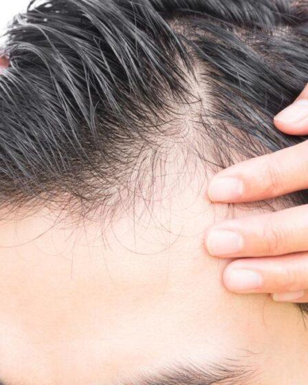 Baldness Treatment for men